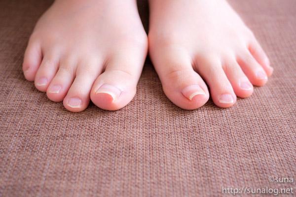 左右の足の巻き爪 横から見た写真