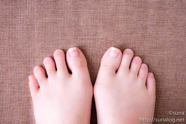 左右の足の巻き爪 上から見た写真