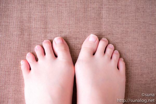爪切り後の左右の足の巻き爪